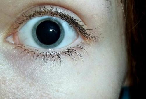 Лекарство для глаз.
