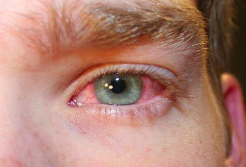 Красный глаз.