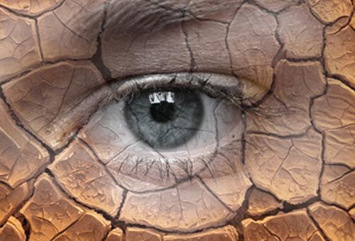 Как лечить синдром {amp}quot;сухого глаза{amp}quot;.
