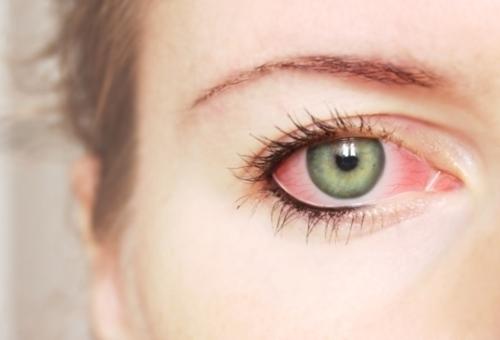 Красные глаза.