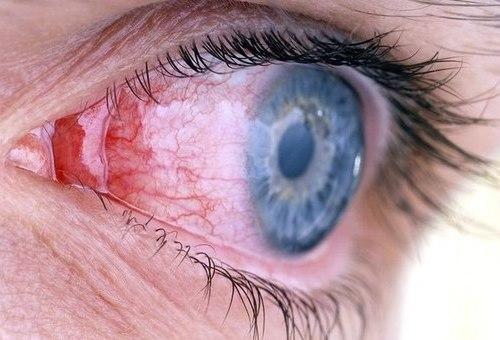 Как лечить болезни глаз?