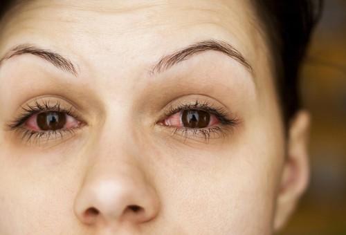 Болезни глаз.
