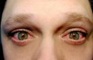 Блефарит— виды, симптомы испособы лечения