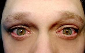 Чешуйчатый блефарит лечение