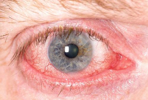 Воспаление глаза.